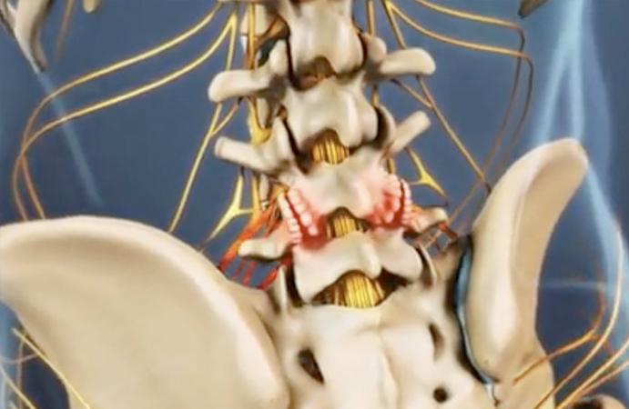 facet-arthritis.jpg