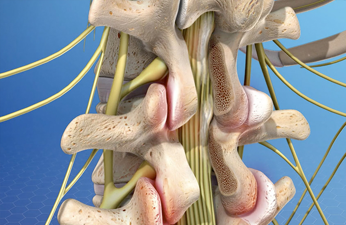 failed-back-surgery-syndrome.jpg