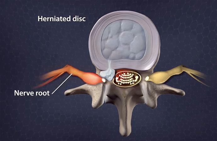 herniated-disc.jpg