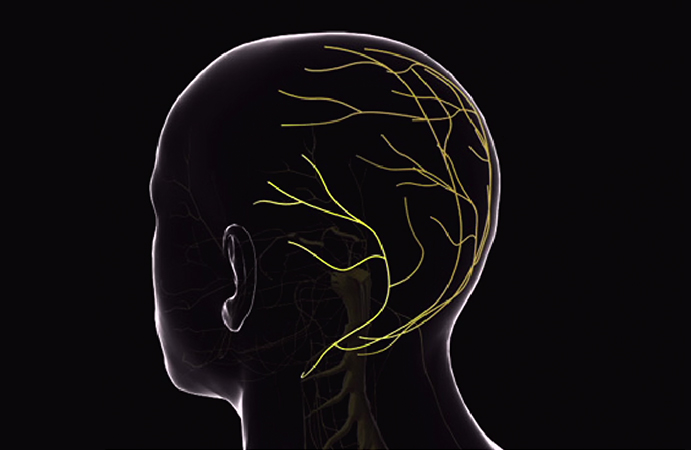 Occipital-Neuralgia.jpg