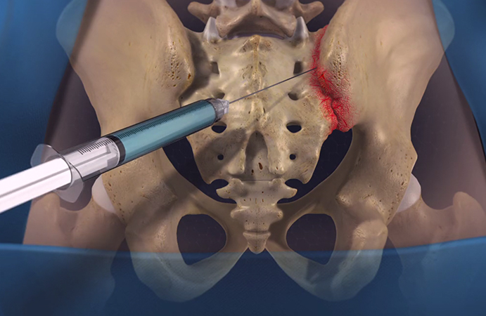 sacroiliac-joint-injection.jpg