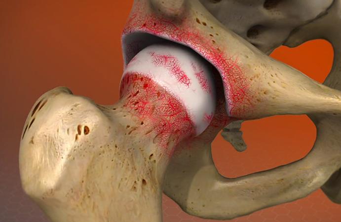 Hip-Arthritis.jpg