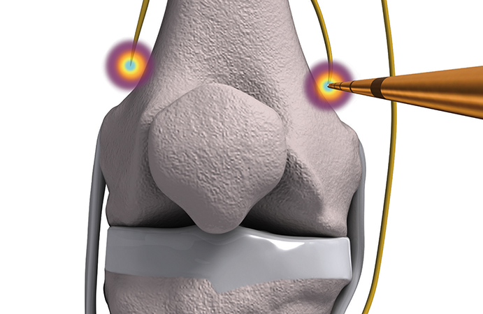 Radiofrequency Ablation – Pain Management at Garden State Medical Center