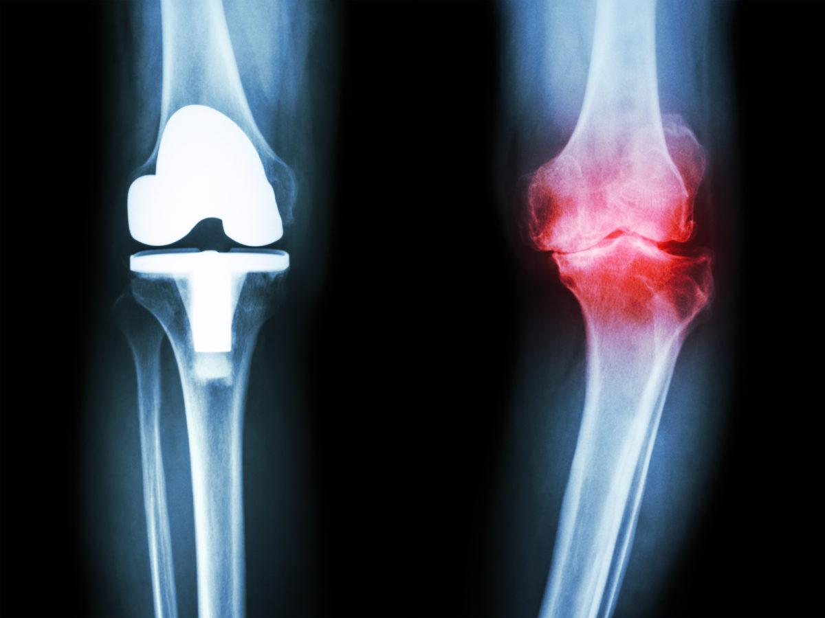 Knee Osteoarthritis 101 The Basics Pain Management At Garden State Medical Center